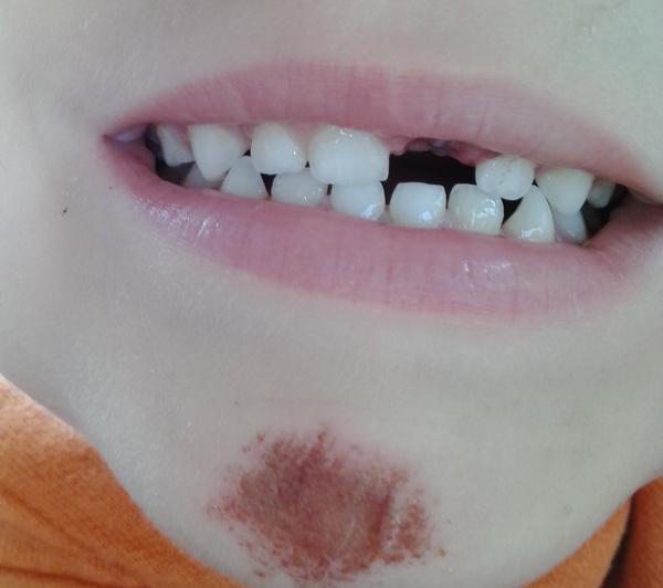 vitek-zub